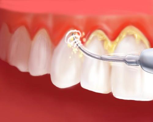 И с плотными зубными отложениями